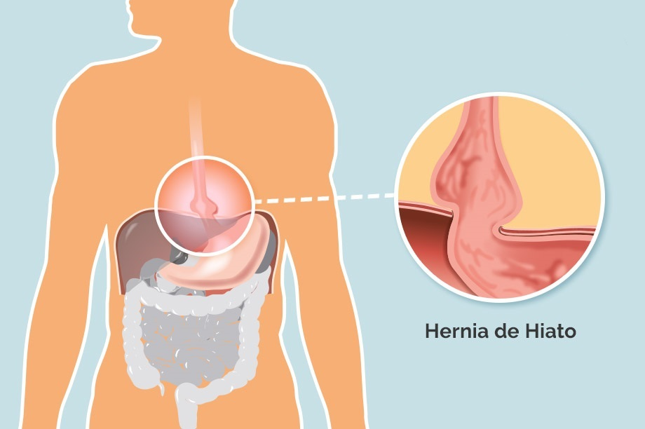 saludabit-hernia-de-hiato